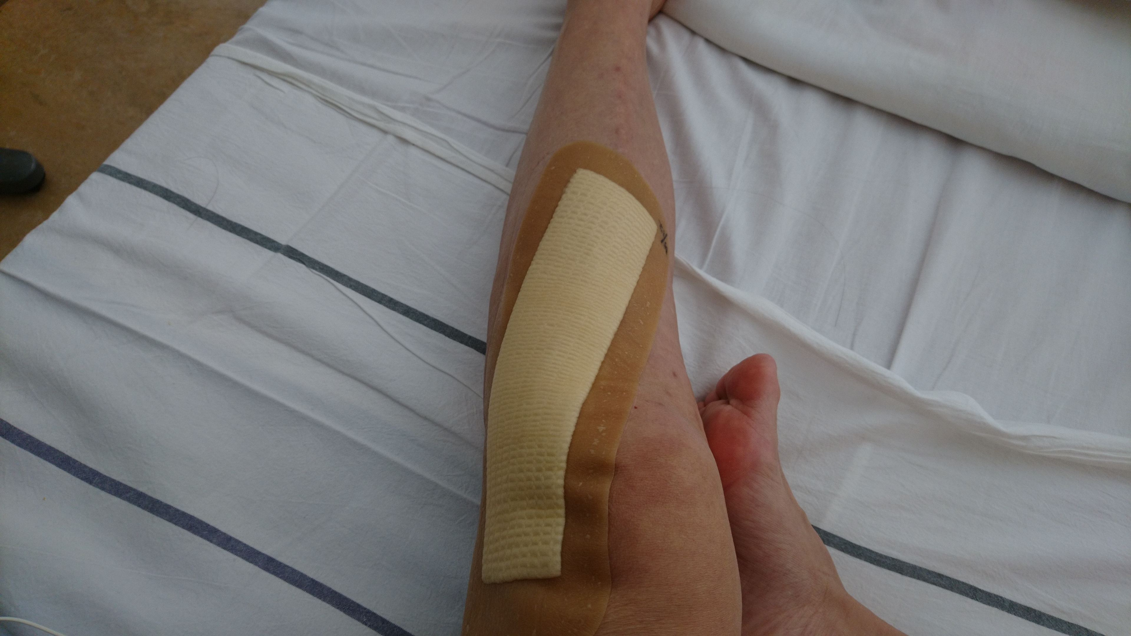 骨折日記36:抜釘後退院、手術3日後に初出勤