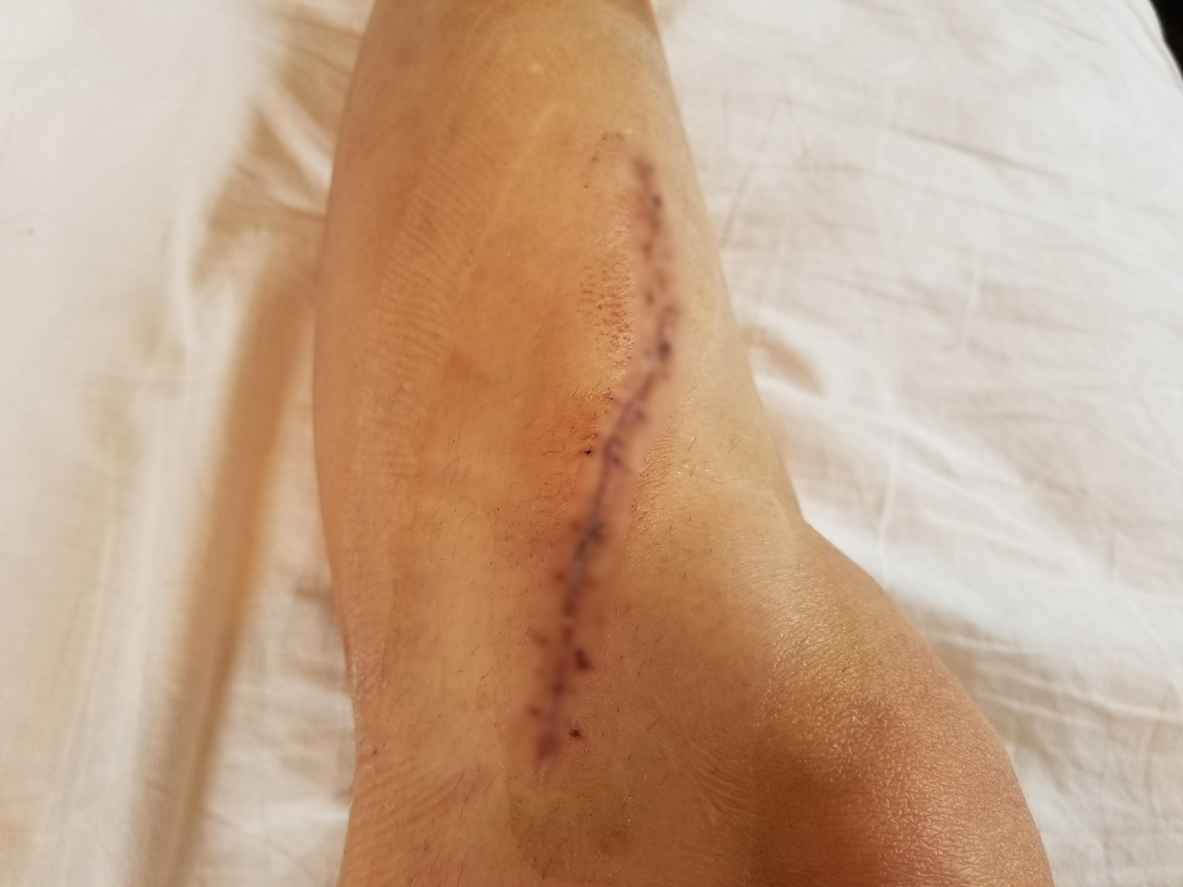 骨折日記38:抜釘手術10日後に抜糸しました