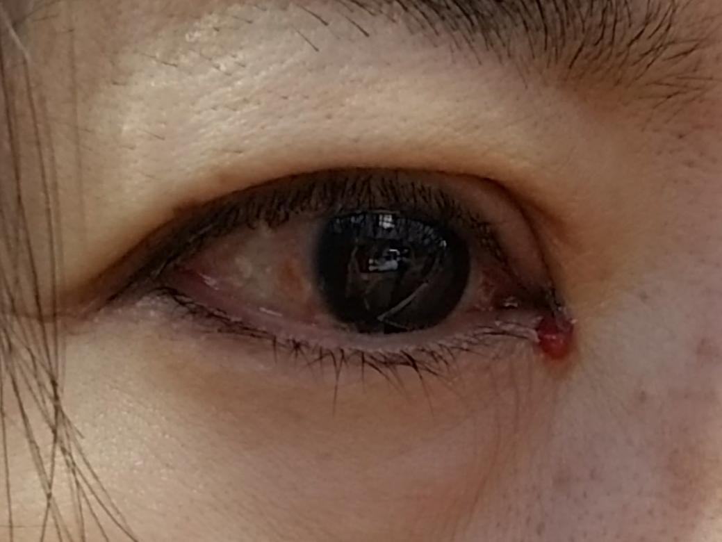 腫れ 治す た の 泣い すぐ あと 目