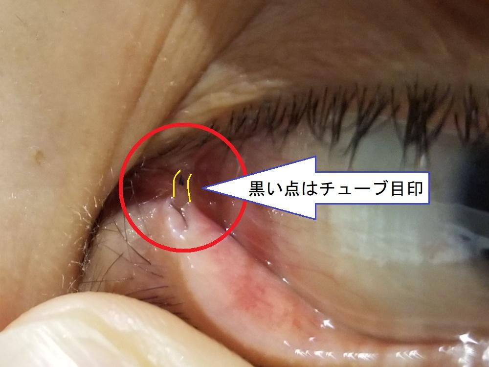 涙道閉塞症による涙嚢炎解消のため涙管チューブ挿入